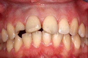 Foto Traumatologie - Zahnunfall - vorher